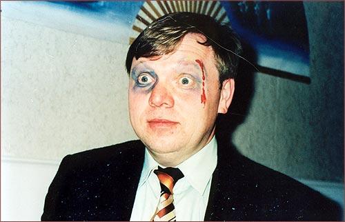 1998 Kurzschlüsse